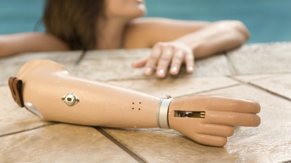Prosthetic-Arm-e1530008713817